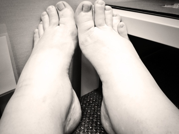 Behold: Traditionally the one reliably dainty part of my body, my ankles are here to eat your soul.